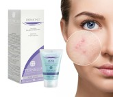GEL FACIAL ANTIIMPERFECTIONS ÉTENELLE PHARNA