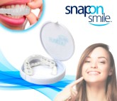 Snap On Smile instantáneos